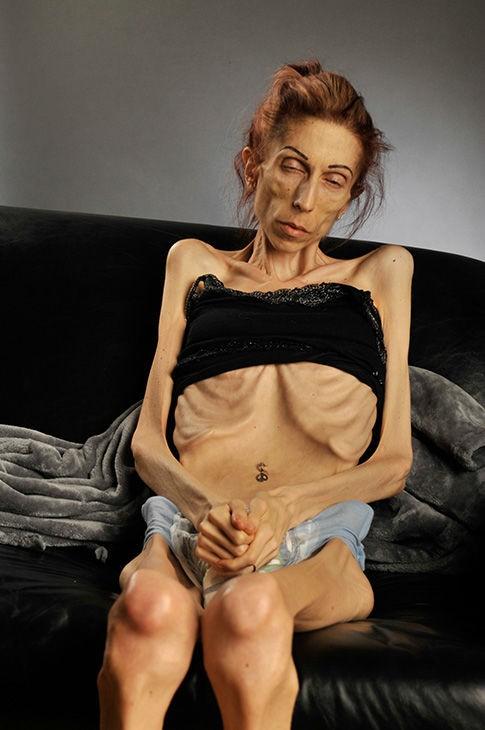 Kaliforniya'daki San Clemente'den Rachael Farrokh yaklaşık 10 senedir Anoreksiya Nervoza hastası. Halen eşi Rod Edmondson'un